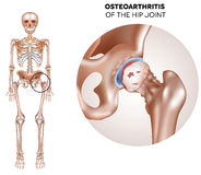 Hip Arthritis Stock Images