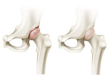 Hip arthritis Stock Photos