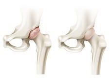 Hip arthritis Stock Photos