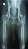 Hip dysplasia Royalty Free Stock Photo