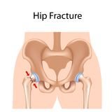 Hip fracture Stock Photography