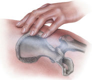 Hip - Hand Applying Pressure on Bone Royalty Free Stock Image