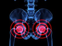 Hip inflammation Stock Photos