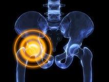Hip inflammation stock illustration