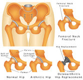 Hip joint Stock Photos
