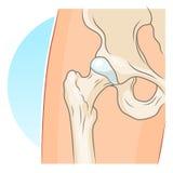 Hip joint illustration. Human hip joint vector illustration Stock Photo