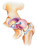 Hip - Joint Opened Lateral View Stock Images