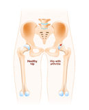 Hip joint with osteoarthritis Stock Photography