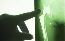 Hip joint replacement impant. X-ray test scan results of old aged person with arthritis and joints pain Stock Photos