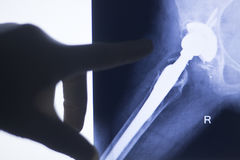 Hip joint replacement impant. X-ray test scan results of old aged person with arthritis and joints pain stock images