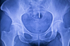 Hip joint replacement xray. Showing ball and socket joint& x27;s titanium implant in medical orthpodedics scan Stock Photography