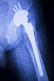 Hip joint replacement xray. Showing ball and socket joint& x27;s titanium implant in medical orthpodedics scan stock images