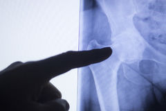Hip joint xray test scan. Hip joint x-ray test scan results of old aged person with arthritis and joints pain Royalty Free Stock Photography