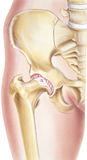 Hip - Osteoarthritis of the joint Stock Image