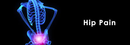 Hip pain Royalty Free Stock Image