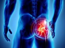 Hip painful skeleton x-ray, 3D illustration. royalty free illustration