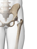 Hip replacement. 3d rendered illustration of a hip replacement Royalty Free Stock Images