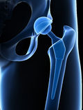 Hip replacement. 3d rendered illustration of a hip replacement Royalty Free Stock Photos