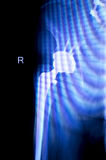 Hip replacement xray orthopedic medical scan. Hip replacement xray orthopedic medical x-ray Traumatology test scan image of old age senior adult Royalty Free Stock Photography