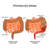 Hirschsprung`s disease. Is a birth defect nerves are missing from parts of the intestine. Constipation. illustration represent the human intestine large and vector illustration
