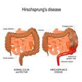 Hirschsprung` s ziekte vector illustratie