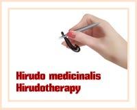 Hirudotherapy Behandeling met bloedzuigers Stock Fotografie
