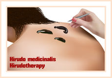 Hirudotherapy. Treatment with leeches. Royalty Free Stock Photography