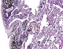 Histologi av det mänskliga silkespappret, showlunga av att röka som sett under mikroskopet arkivfoto