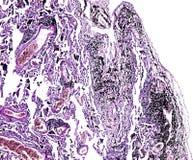 Histologi av det mänskliga silkespappret, showlunga av att röka som sett under mikroskopet, zoom 10x royaltyfri bild