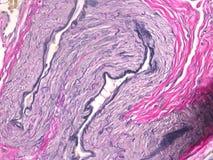 Histologi av livmodern Arkivbild