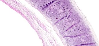 A histologia do tecido humano, mostra o metaplasia squamous da mucosa brônquica como considerado sob o microscópio Imagens de Stock