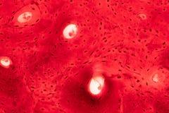 Histologie van menselijk compact beenweefsel onder microscoopmening voor stock afbeelding