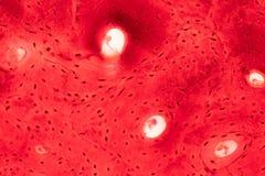 Histologie van menselijk compact beenweefsel onder microscoopmening voor stock afbeeldingen