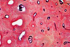 Histologie van menselijk compact beenweefsel onder microscoopmening voor stock foto's