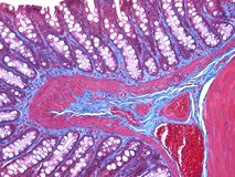 Histology of the Colon Stock Photography