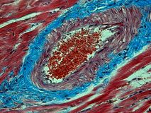 Histology of a Heart Stock Images