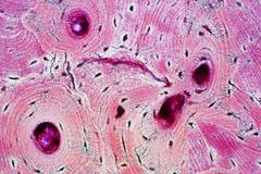 Histology of human compact bone tissue under microscope view for. Education, muscle bone connection and connective tissue stock photography