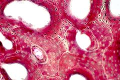 Histology of human compact bone tissue under microscope view for education. Muscle bone connection and connective tissue stock photo