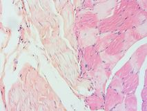 Histology of human muscle tendon connection tissue Stock Images