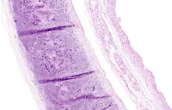 Histology of human tissue, show tracheitis and squamous metaplasia of bronchial mucosa as seen under the microscope Stock Photo