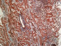 Histology of a Kidney. This is an Kidney seen under a microscope at 10X.  It has been stained using the Masson's Trichrome Blue technique to highlight the muscle Stock Images