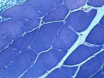 Free Histology Of Muscle Stained With PTAH Stock Photos - 40786203