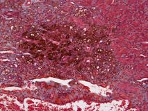 Histology of possible Melanoma. Melanoma is not strictly for skin, it can be anywhere in the body. It is in this case brown and found in the uterus of a rat. The stock images