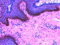 Histology of Skin stained with H&E. This is human skin stained with hematoxylin (purple) and eosin (pink) also called H&E. From top, the blue with round nuclei royalty free stock image