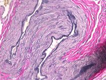 Histology of the Uterus. This photograph shows the relative amount of elastic fibers inside the uterus (black). This tissue has been stained with the Verhoeff stock photography