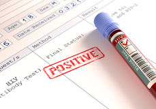 HIV阳性 库存图片