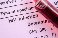 HIV infection screening test form. Sample blood in syringe on HIV infection screening test form stock photo