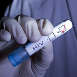 HIV-POSITIV Stockfotos