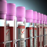 HIV-POSITIV stockbild