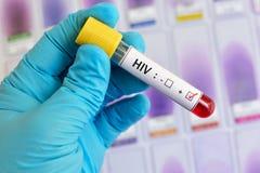 HIV positive blood sample. Lab technician holding blood sample positive with HIV Stock Photos
